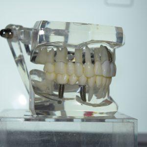 Implanty już od 2500zł